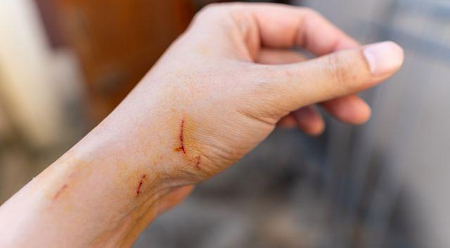 Penyebab Penyakit Cakar Kucing